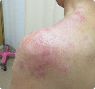 だけ 帯状 疱疹 かゆみ 【医師監修】帯状疱疹のかゆみはいつまで続くの?どんな薬が処方される?