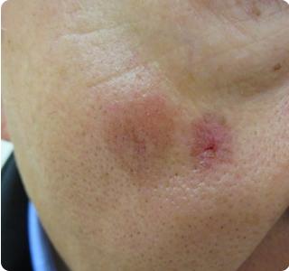 う パジェット にゅ ぼう 病 外 がん診療ガイドライン│皮膚悪性腫瘍│乳房外パジェット病